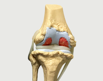 Advanced stage of arthrosis